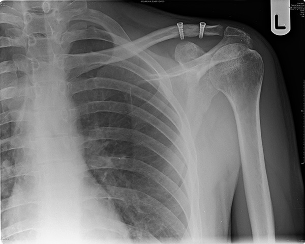 acromioclavicular joint injuries acj yorkshire