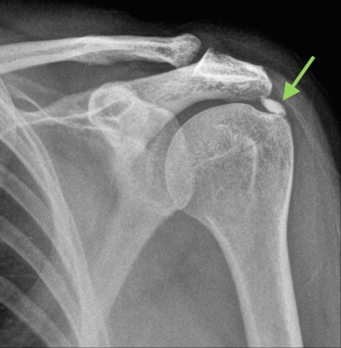 Calcific Tendonitis - Yorkshire Shoulder Clinic